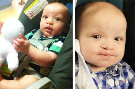 (l-r) Benjamin Caines at six and seven months old respectively, post-surgery.